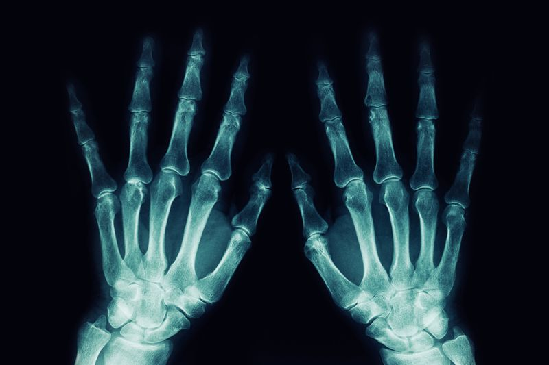 What Are X-Rays? Electromagnetic Spectrum Facts and Uses